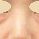 【クマ取り】目の下の切らないたるみ取り+脂肪注入(3ヵ月後)[ビフォー]