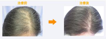 の薄毛治療の症例写真