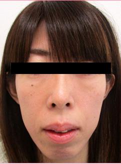 ■経結膜脱脂の症例写真[アフター]