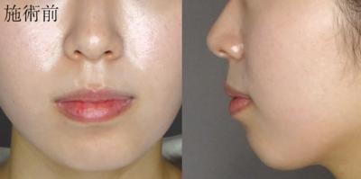 3DEライン(顎形成術)の症例写真[ビフォー]