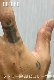 GLANZ CLINIC (グランツクリニック)のタトゥー除去の症例写真[ビフォー]