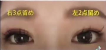 くみこクリニック 京都四条烏丸院の症例写真[アフター]