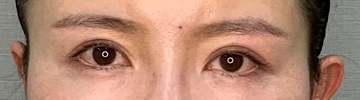 神戸ヴィオラクリニックの目・二重整形の症例写真[アフター]