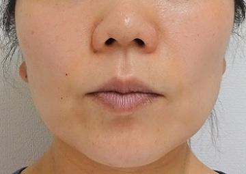 TCB 東京中央美容外科の顔の整形(輪郭・顎の整形)の症例写真[アフター]