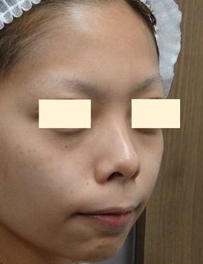 鼻の整形の症例写真[ビフォー]