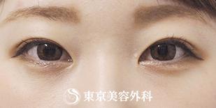 【埋没二重+まぶたの脂肪取り】自然な二重で美人顔にの症例写真[アフター]