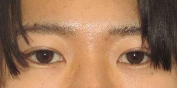 湘南美容クリニック 高崎院の目・二重の整形の症例写真[アフター]