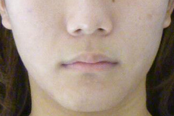 東京イセアクリニック銀座院のニキビ治療・ニキビ跡の治療の症例写真[アフター]