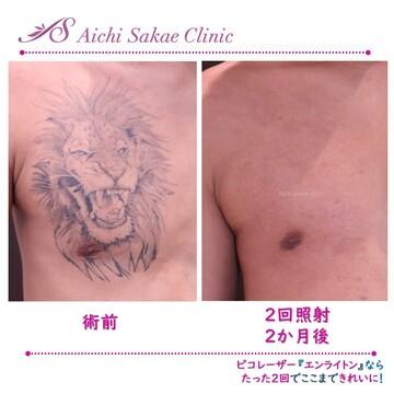 あいち栄クリニックのタトゥー除去(刺青・入れ墨を消す治療)の症例写真