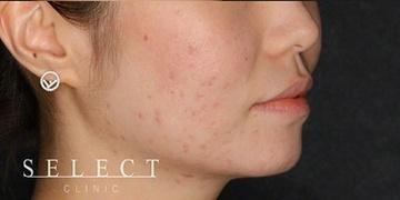 SELECT CLINIC (セレクトクリニック)のニキビ治療・ニキビ跡の治療の症例写真[アフター]