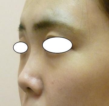 N クリニックの鼻の整形の症例写真[ビフォー]