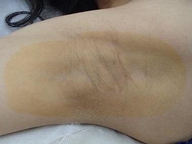 わきが・多汗症治療(ミラドライ)の症例写真[アフター]