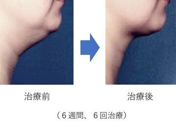 の痩身、メディカルダイエットの症例写真