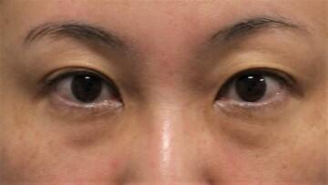 ウィクリニック 大宮院の目・二重整形の症例写真[ビフォー]
