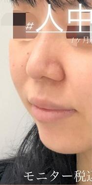 ルラ美容クリニックの口元・唇の整形の症例写真[ビフォー]