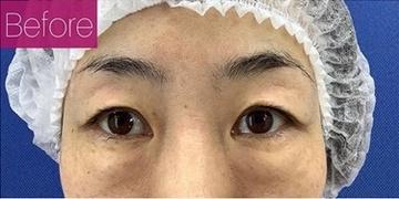 銀座長瀬クリニックの目元整形・クマ治療の症例写真[ビフォー]