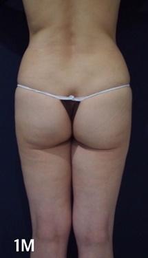 S.T style クリニック(エスティスタイルクリニック)の脂肪吸引の症例写真[アフター]