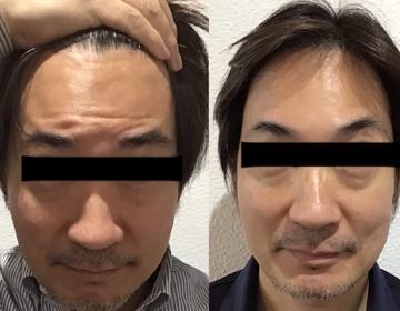 の顔のしわ・たるみの整形の症例写真
