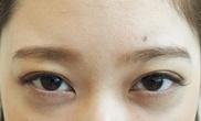 タウン形成外科クリニックの顔のしわ・たるみの整形(リフトアップ手術)の症例写真[アフター]