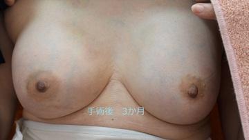 心斎橋コムロ美容外科クリニックの豊胸手術(胸の整形)の症例写真[アフター]