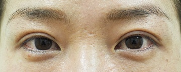タウン形成外科クリニックの目・二重整形の症例写真[アフター]