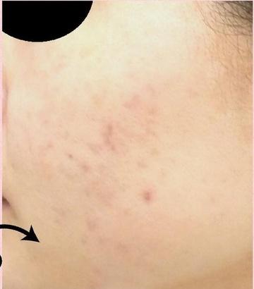 広島プルミエクリニックのニキビ・ニキビ跡の治療の症例写真[アフター]