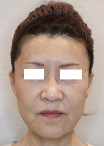ザ ナチュラルビューティークリニック 四ツ橋院の顔のしわ・たるみの整形(リフトアップ手術)の症例写真[アフター]