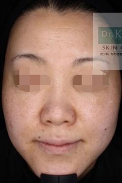皮フ科 かわさきかおりクリニックのシミ取り・肝斑・毛穴治療の症例写真[ビフォー]