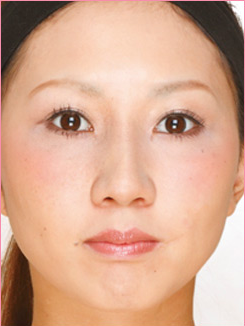 ■隆鼻術+耳介軟骨移植の症例写真[アフター]