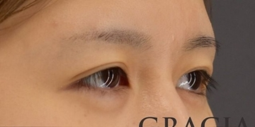 GRACIA clinic(グラシアクリニック)の目元の整形、くま治療の症例写真[ビフォー]