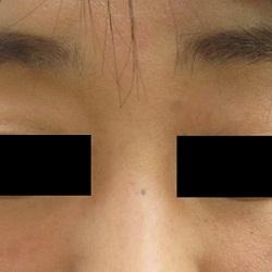 はなふさ皮膚科のホクロ除去・あざ治療・イボ治療の症例写真[アフター]
