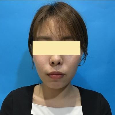 バッカルファット(頬脂肪)除去手術 術前・術後2週間の症例写真[アフター]