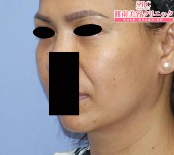 湘南美容クリニック大阪梅田院の顔のしわ・たるみの整形(リフトアップ手術)の症例写真[アフター]