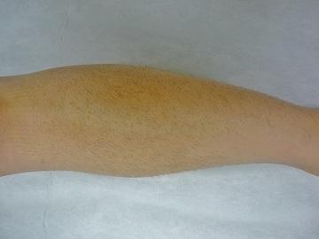 新宿フェミークリニックの医療レーザー脱毛の症例写真[ビフォー]