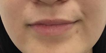 東郷美容形成外科 福岡の口もと、唇の整形の症例写真[ビフォー]