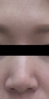 大西皮フ科形成外科医院の鼻の整形の症例写真[ビフォー]