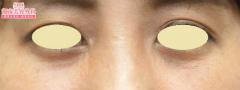 湘南美容クリニック 熊本院の目・二重整形の症例写真[アフター]