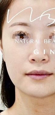 Natural Beauty Clinic GINZA(ナチュラルビューティークリニックギンザ)の顔の整形(輪郭・顎の整形)の症例写真[ビフォー]