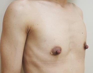 豊胸術(スーパーソフト・コヒーシブシリコン)の症例写真[ビフォー]