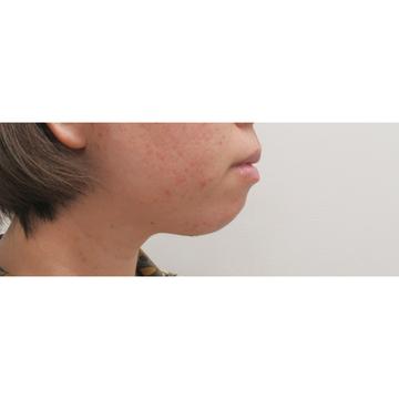 水の森美容外科の顔の整形(輪郭・顎の整形)の症例写真[ビフォー]
