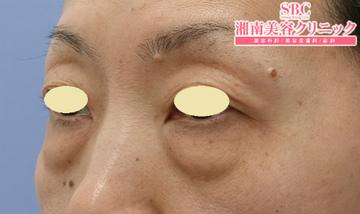 湘南美容クリニック名古屋 栄院の目元の整形、くま治療の症例写真[ビフォー]