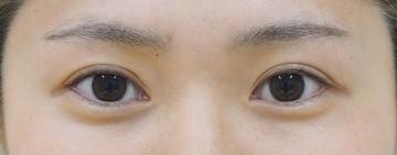 タウン形成外科クリニックの目・二重の整形の症例写真[アフター]