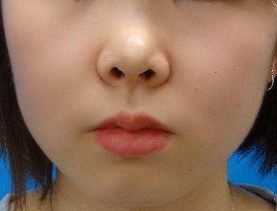 小鼻縮小 埋没法 スーパーナチュラルの症例写真[アフター]
