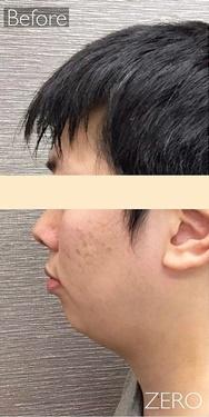 東京ゼロクリニック銀座の痩身、メディカルダイエットの症例写真[ビフォー]