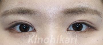 樹のひかり形成外科・皮ふ科の目・二重の整形の症例写真[アフター]