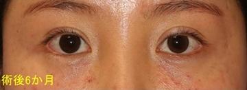 宮益坂クリニックの目・二重の整形の症例写真[アフター]