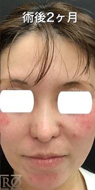 東京ゼロクリニック銀座の鼻の整形の症例写真[アフター]