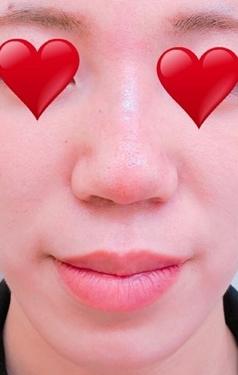 大西皮フ科形成外科医院の鼻の整形の症例写真[アフター]