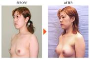 恵聖会クリニックの豊胸手術(胸の整形)の症例写真