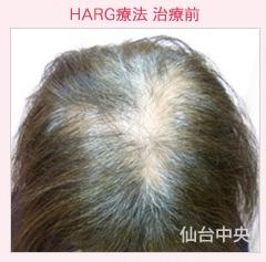 ハーグ療法、女性型薄毛症の症例写真[ビフォー]